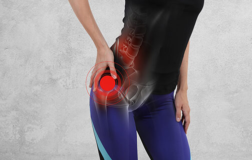 After a Hip Fracture